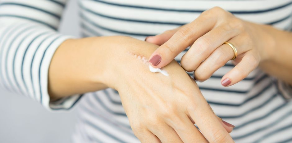 5 Best Creams To Remove Scars From Your Skin