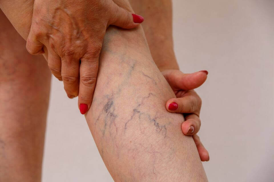 Best Products To Eliminate Varicose Veins On Your Legs